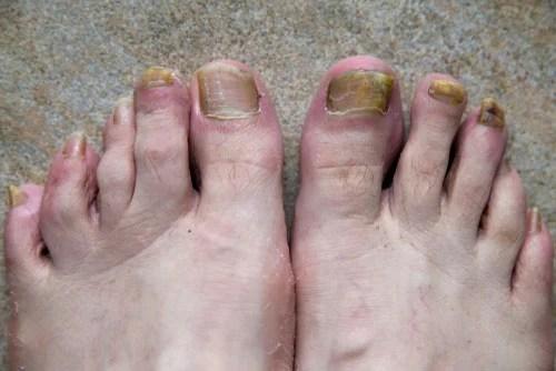 Onicomicose em ambos pés