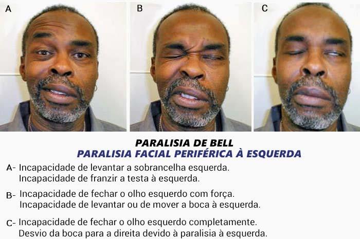 Sintomas da paralisia de Bell