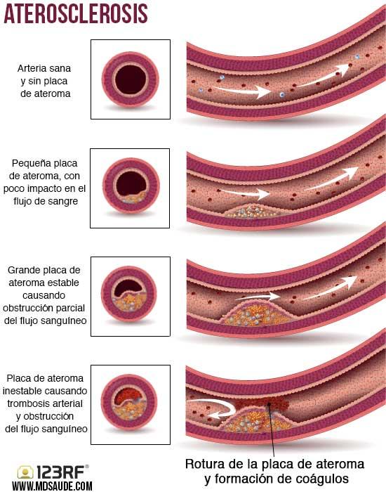 rotura de la placa de colesterol y la formación de coágulos