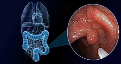 Pólipo intestinal