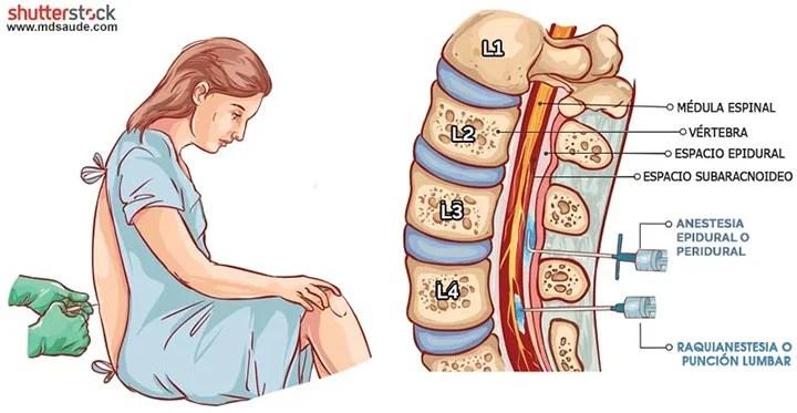 Cómo surge la cefalea espinal