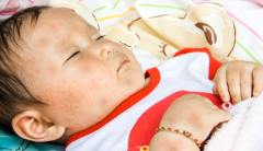 Roséola infantil - exantema súbito