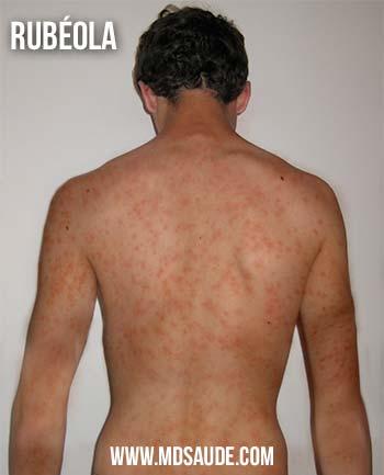 rash de la rubéola