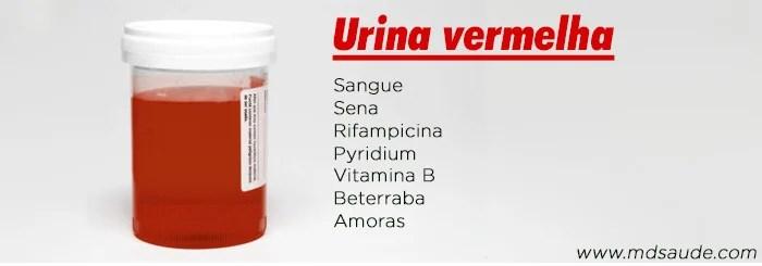 Causas de urina vermelha