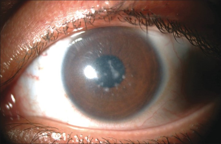 Figure 1 Lamp Biomicroscopy Showing Focal Grayish White Opacities With Indistinct Borders In The Superficial And Deep Corneal Stroma