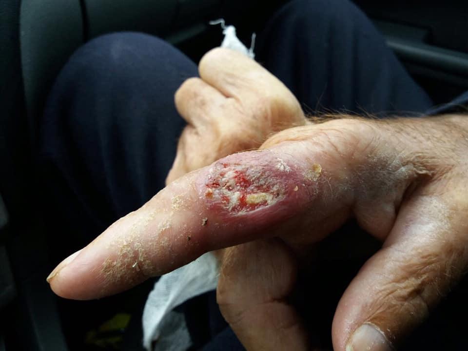 Bazandu-te DOAR pe inspectia plagii si mainii ce poti spune despre aceasta ?2