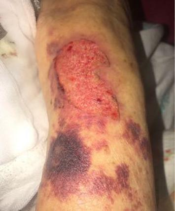 Ce accidente se pot intampla la toaletarea unui pacient complet NEDEPLASABIL ?3.1