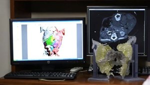 3-D color segmentation of CT data with 3-D model.