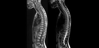 MRI Vs CT Scan