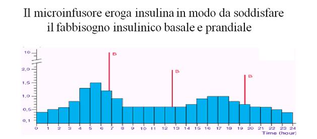 IL MICROINFUSORE-2