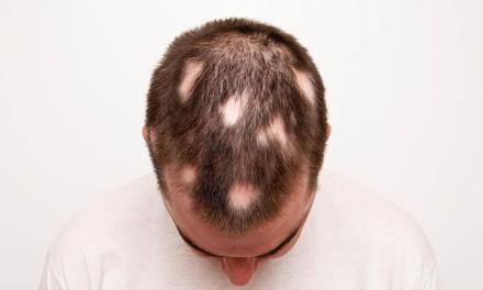 Remèdes naturels conseillés pour la pelade