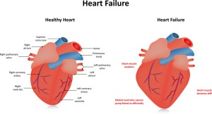 Restarting ACE Inhibitors in CHF  Speaking From Experience  Med Ed 101