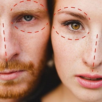 chirurgie esthetique couple beauty matching