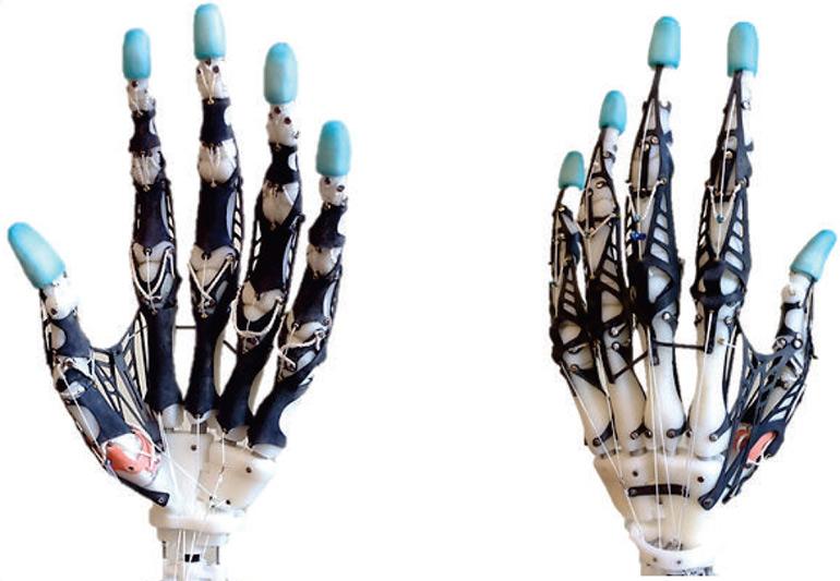 https://i2.wp.com/www.medgadget.com/wp-content/uploads/2016/02/UW-prosthetic-hand.jpg