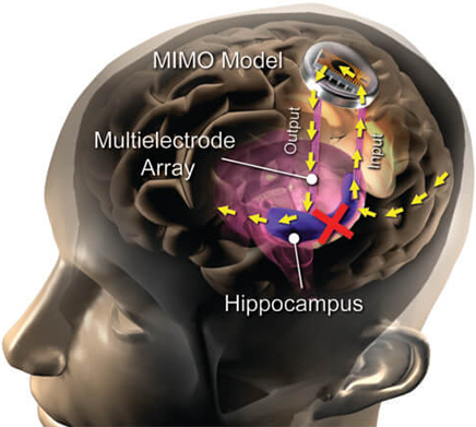 Implanted Brain Prosthesis Helps to Retain New Memories | Medgadget