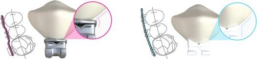 LightForce Orthodontics, Maker of 3D Printed Braces, Raises $14M Series B 2