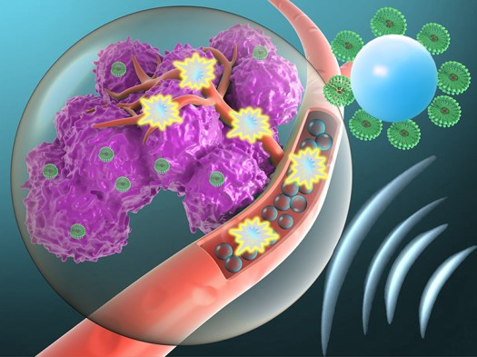 Microbubbles Deliver Drugs Directly to Tumors 2