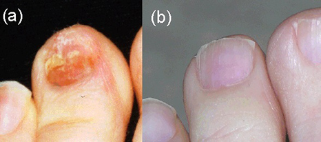 ToeMate Nail Soak Fungus Treatment Kits 4