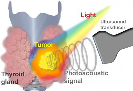 AI and Multispectral Photoacoustic Imaging to Diagnose Thyroid Cancer 2