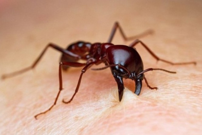 Image Titled Treat A Fire Ant Sting Step 6