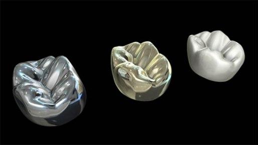 Proses Penambalan Gigi- Global Estetik Dental Care