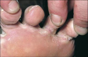 Dermatophytose