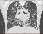 Imagerie TDM de la mucoviscidose