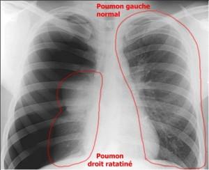 Pneumothorax Radiography