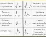 ECG pathologiques