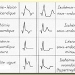 Myocardial Infarction ECG