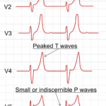 Electrolyte Disorders ECG