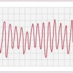 Troubles du rythme cardiaque ECG