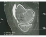 Lésions méniscales et ligamentaires du genou