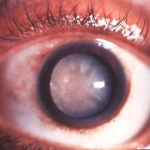 Ocular Diseases (Onchocerciasis, Loase, pterygium, cataracts)