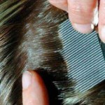 Lice (pediculosis)