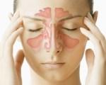 Sinusite aiguë
