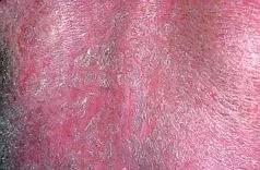 Éruption cutanée suite à une prise médicamenteuse (toxidermie)
