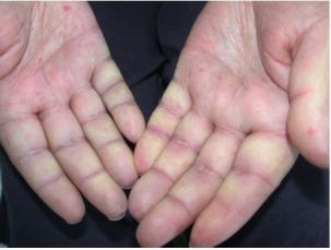 Vascular acrosyndrome
