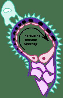 Extramembrane glomerulopathy