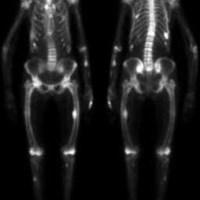 Ostéodystrophie rénale