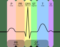 Principales Anomalies Électrocardiographiques