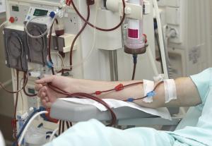 혈액 투석 중 인공 지능으로 저혈압 예측
