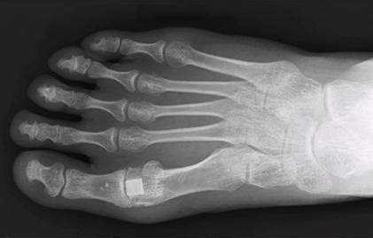 Cartiva S Water Based Implant For Big Toe Damage Medical