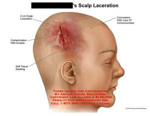 AMICUS Illustration of amicus,injury,scalp,head,laceration