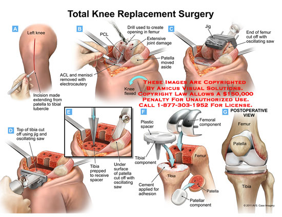 </h4> <p>total knee replacement surgery