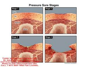 AMICUS Illustration of amicus,injury,sore,stage,skin,fat