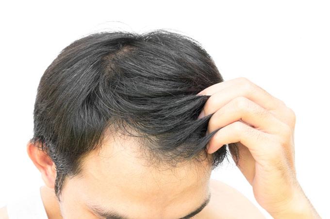 protesi per capelli