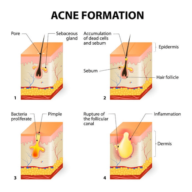 Acne Formation Diagram