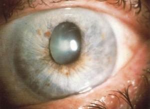 acute-glaucoma (1)