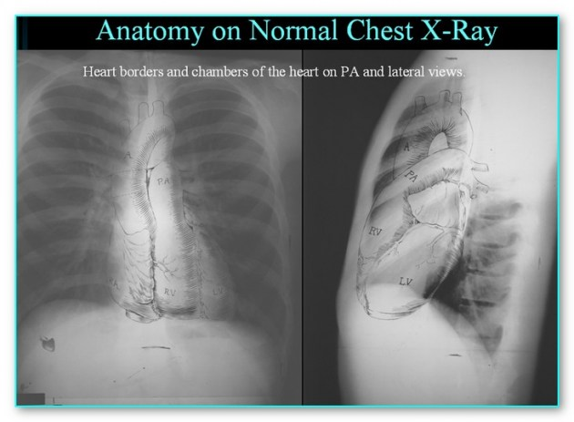 Anatomy of the Chest radiograph - The MMR